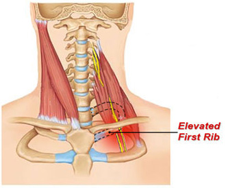 shoulder pain first rib fixation