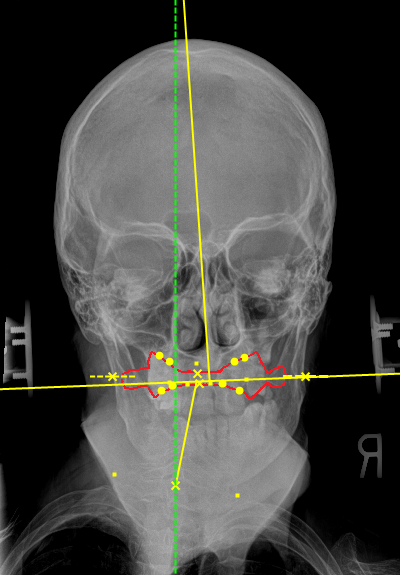 Atlas Orthogonal Portland Upper Cervical
