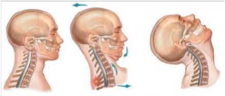 whiplash injury to neck portland chiropractor chris cooper