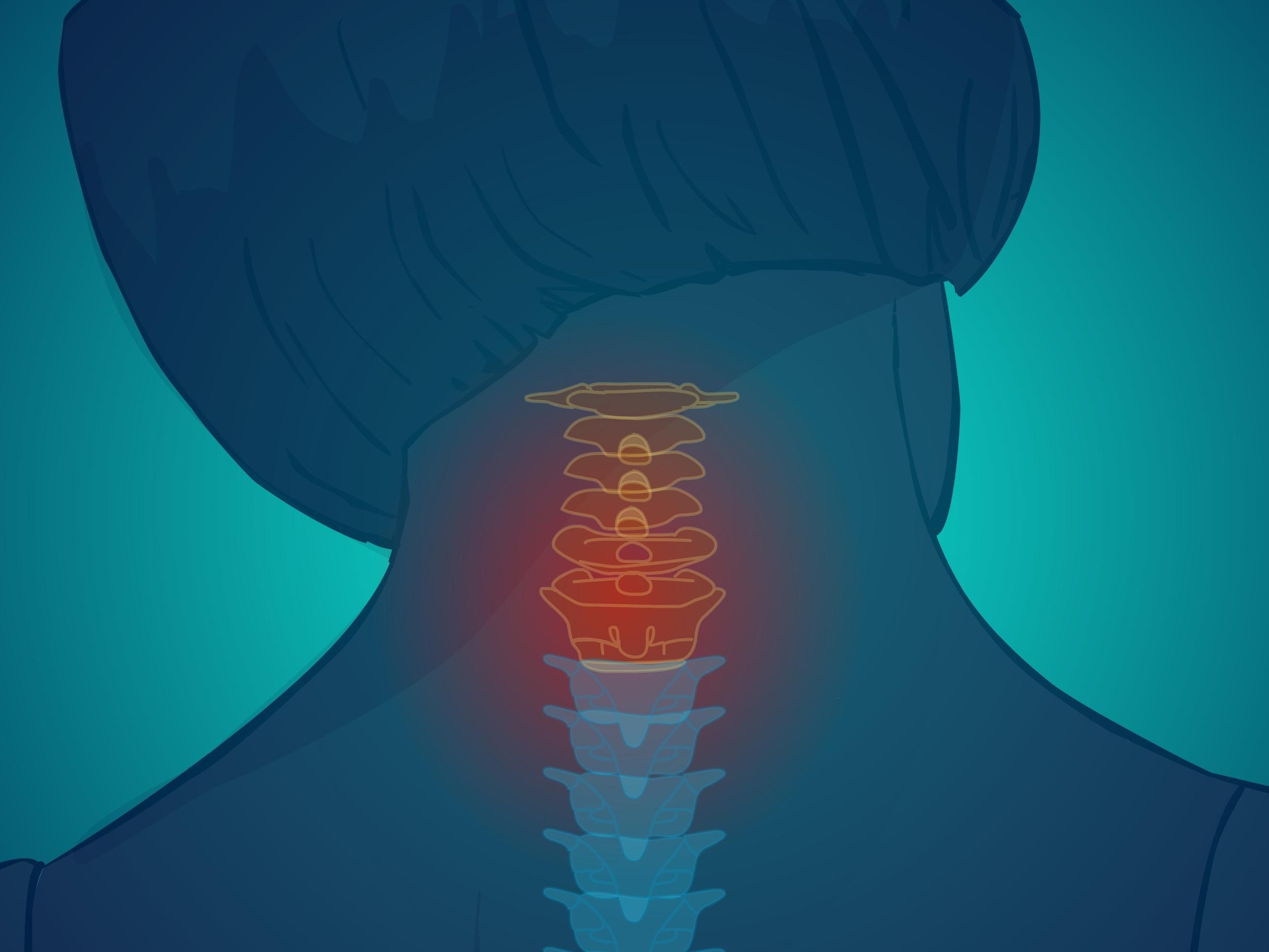 Neck pain study portland chiropractor