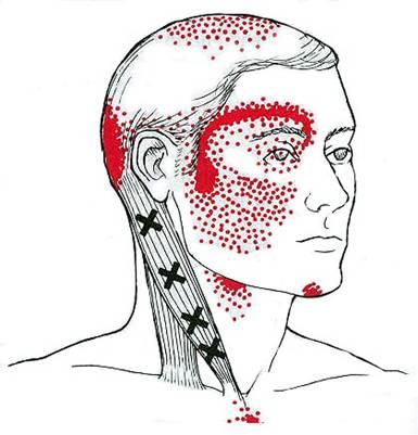 Cervicogenic Headache Common Pain Pattern Referral
