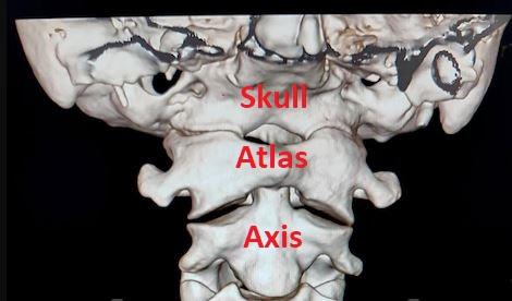 Atlas Chiropractic Adjustment